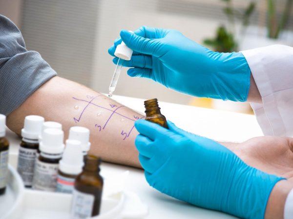 allergy-test-1
